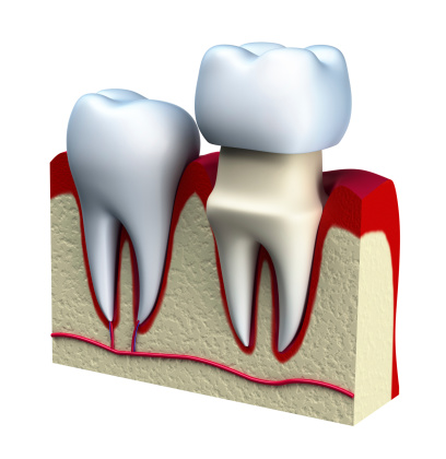 Dental Crowns at Michael T. Westendorf DDS