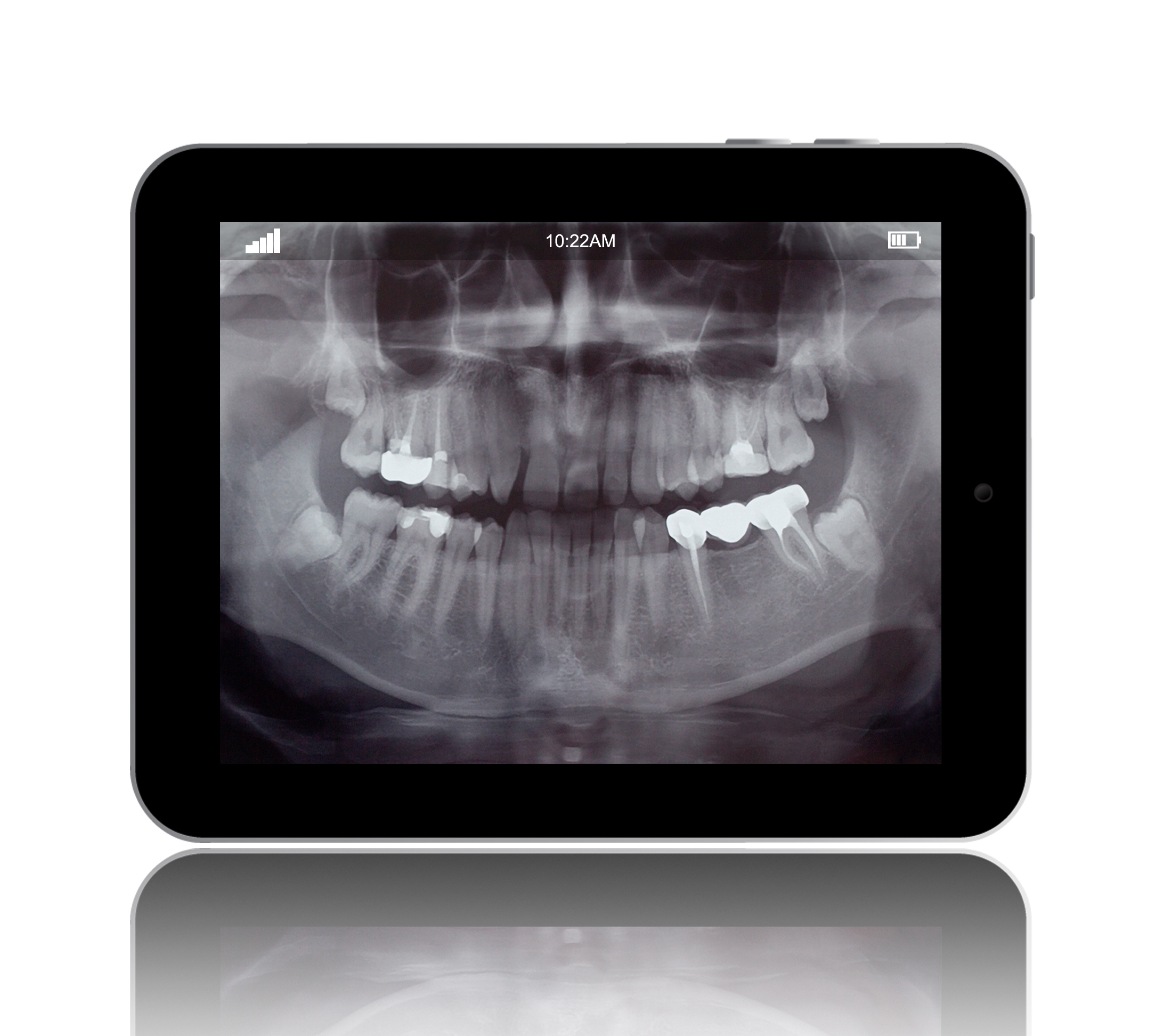Digital X-rays are offered at Michael T. Westendorf DDS
