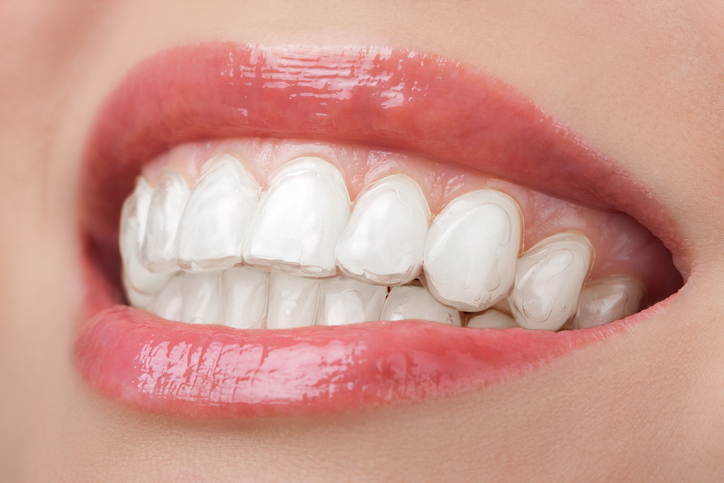 Teeth Whitening at Michael T. Westendorf DDS