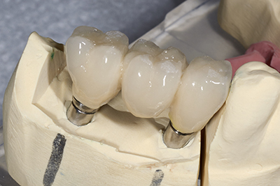 Porcelain fixed bridges done by our dentist at Michael T. Westendorf DDS